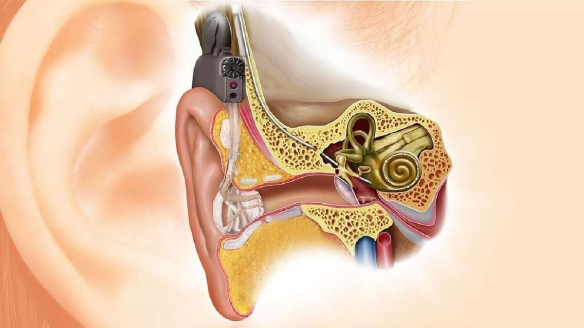 L'implant cochléaire_album-oreille3