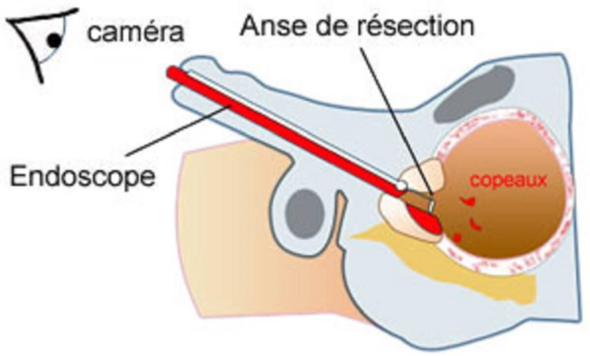 resection-endoscopique-prostate